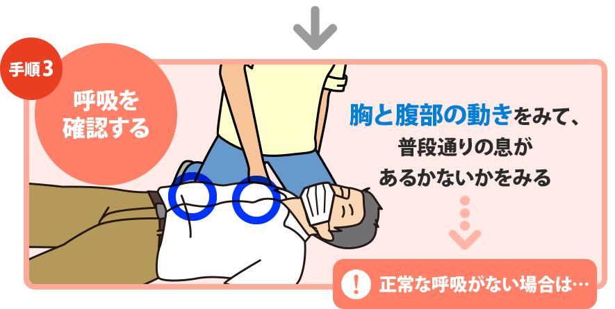 心肺蘇生法の手順|日本医師会 救急蘇生法